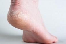 6 cách chữa trị nứt nẻ tay chân vào mùa đông